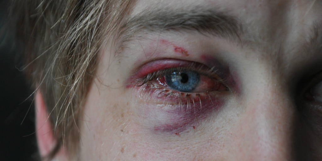 Battered - Flash Fiction by Jenny Roman